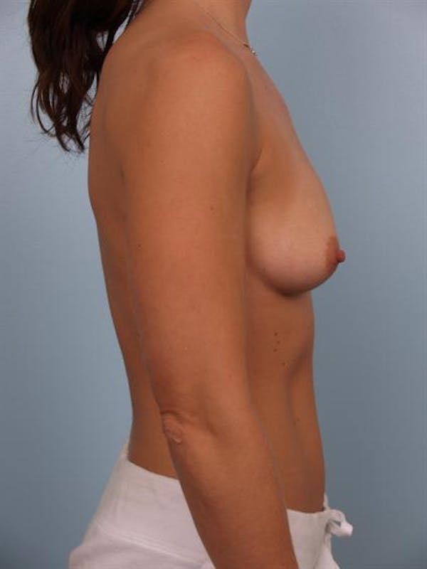 Breast Augmentation Gallery - Patient 1310439 - Image 5