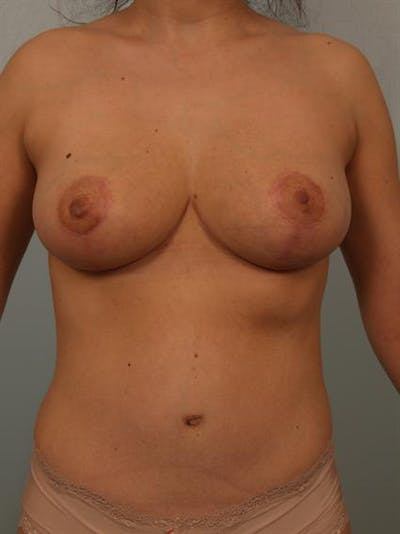 Breast Reduction Gallery - Patient 1310441 - Image 2