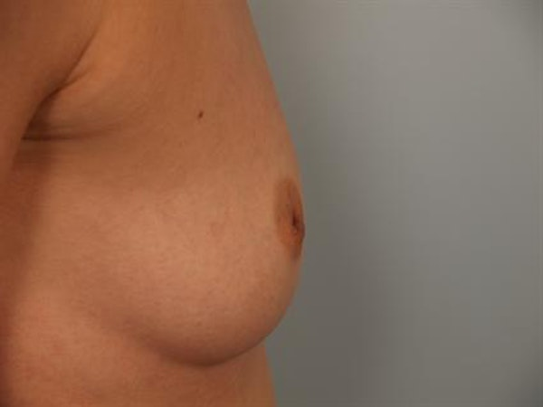 Nipple/Areolar Surgery Gallery - Patient 1310438 - Image 5