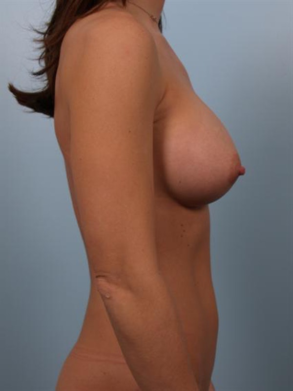 Breast Augmentation Gallery - Patient 1310439 - Image 6