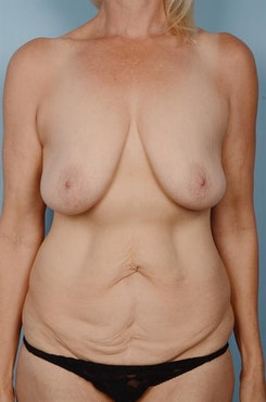Image1 - Before and after image of Breast Lift by Dr. Cohen.