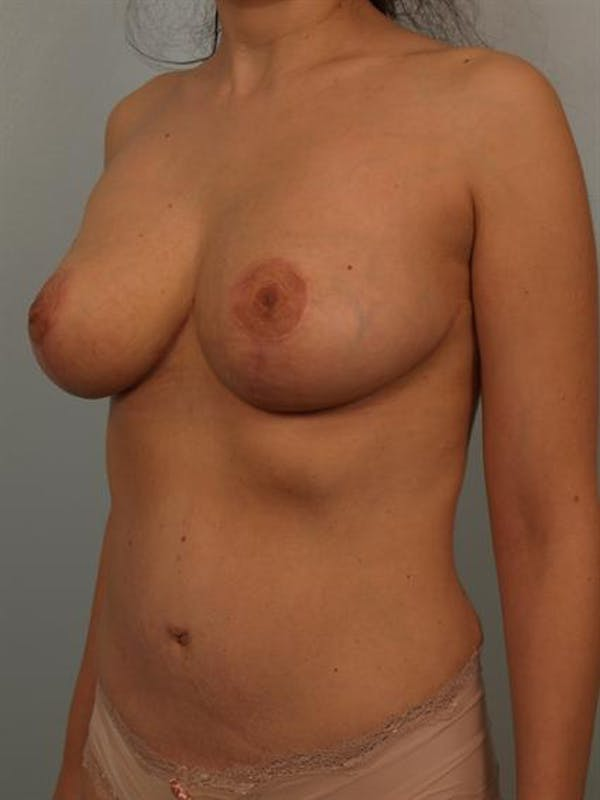 Breast Reduction Gallery - Patient 1310441 - Image 4