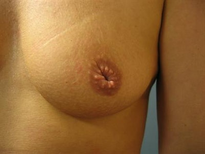 Nipple/Areolar Surgery Gallery - Patient 1310443 - Image 1