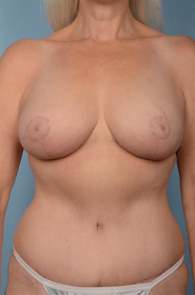 Breast Lift Gallery - Patient 1310442 - Image 2