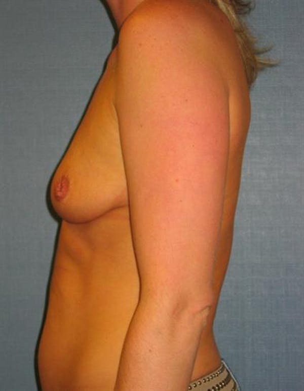 Nipple/Areolar Surgery Gallery - Patient 1310443 - Image 3