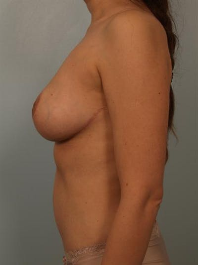 Breast Reduction Gallery - Patient 1310441 - Image 6