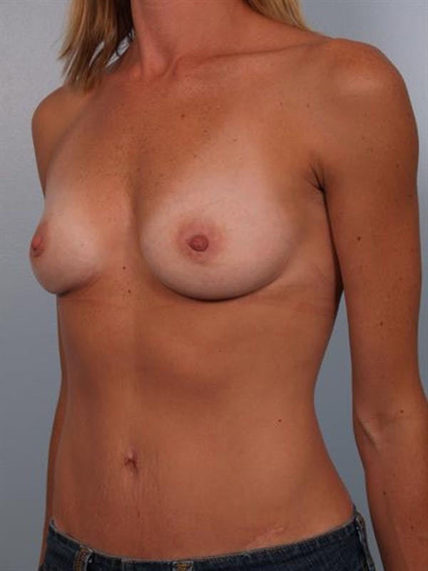 Breast Augmentation Gallery - Patient 1310444 - Image 1