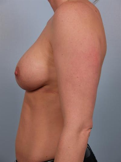 Nipple/Areolar Surgery Gallery - Patient 1310443 - Image 4