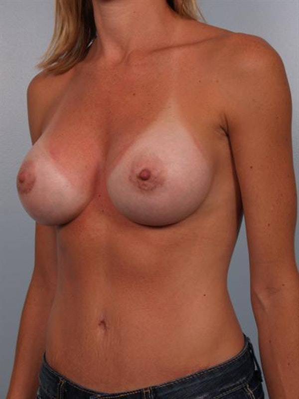 Breast Augmentation Gallery - Patient 1310444 - Image 2