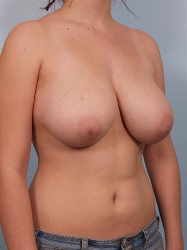 Breast Reduction Gallery - Patient 1310445 - Image 3