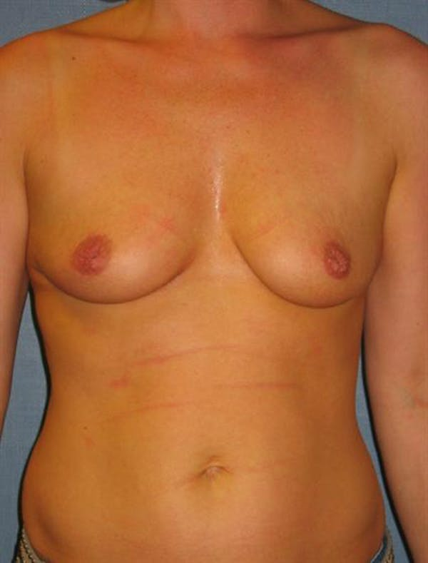 Nipple/Areolar Surgery Gallery - Patient 1310443 - Image 5