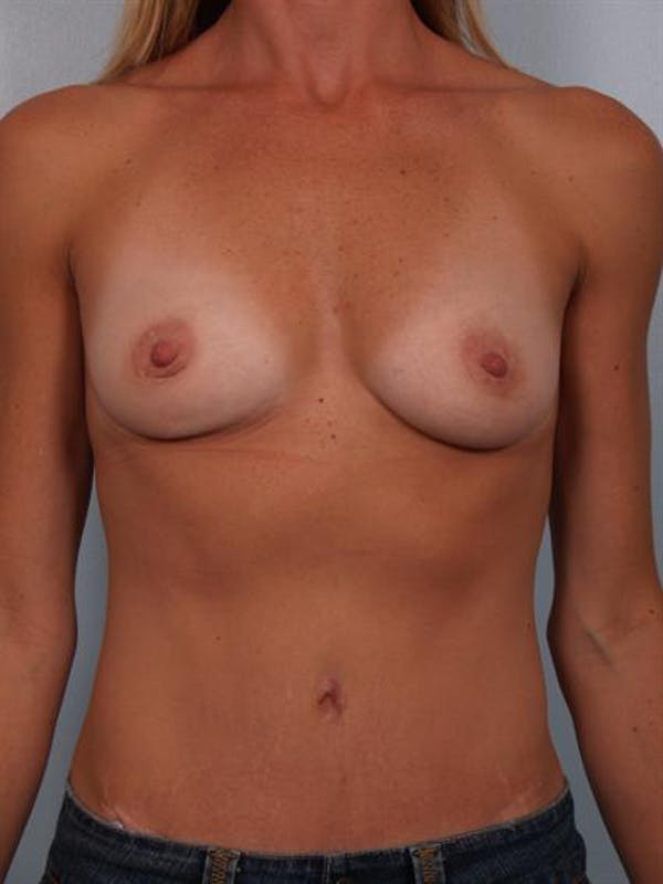 Breast Augmentation Gallery - Patient 1310444 - Image 3