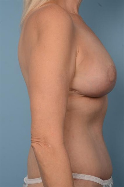 Breast Lift Gallery - Patient 1310442 - Image 6