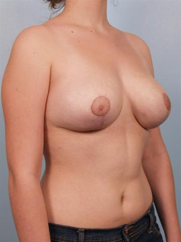 Breast Reduction Gallery - Patient 1310445 - Image 4