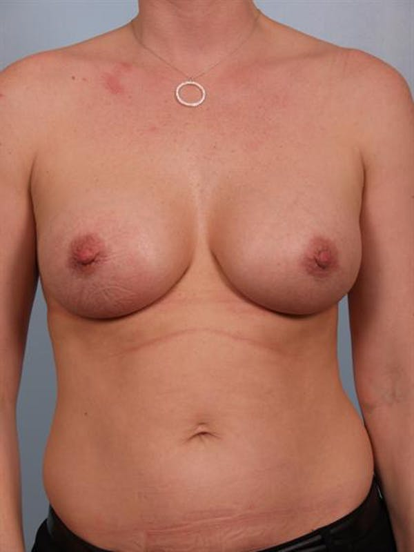 Nipple/Areolar Surgery Gallery - Patient 1310443 - Image 6