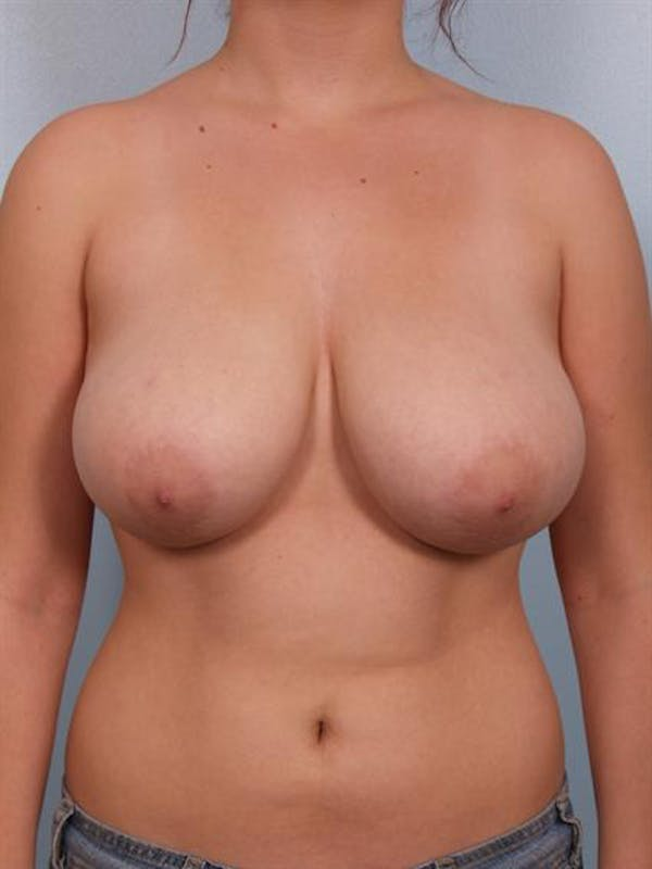 Breast Reduction Gallery - Patient 1310445 - Image 1