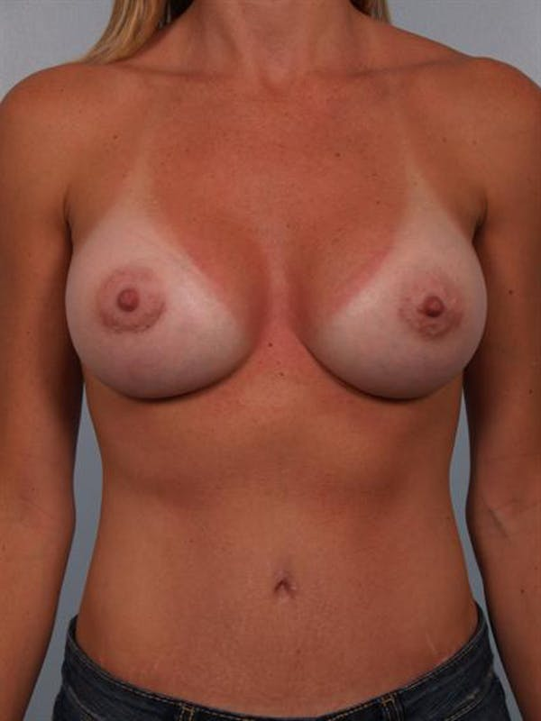Breast Augmentation Gallery - Patient 1310444 - Image 4