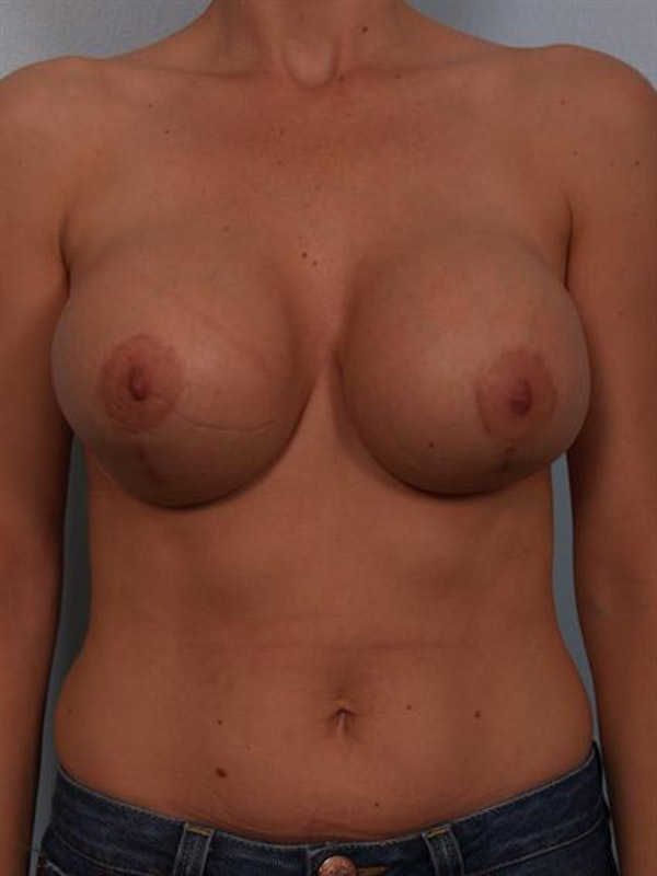 Breast Lift Gallery - Patient 1310446 - Image 1