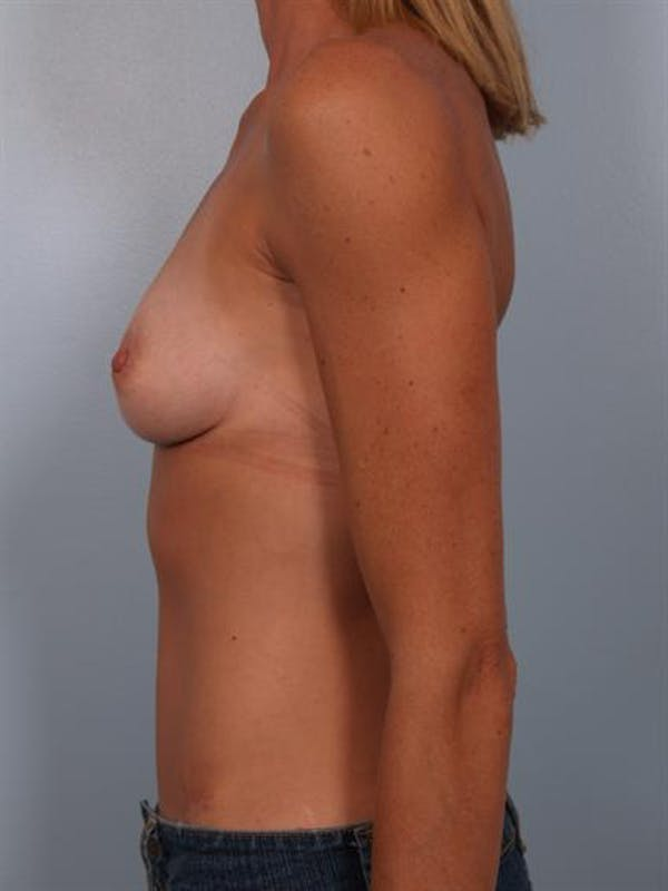 Breast Augmentation Gallery - Patient 1310444 - Image 5