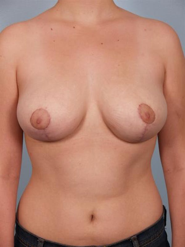 Breast Reduction Gallery - Patient 1310445 - Image 2