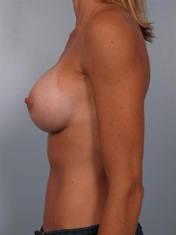 Breast Augmentation Gallery - Patient 1310444 - Image 6