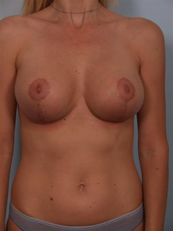 Breast Lift Gallery - Patient 1310446 - Image 2