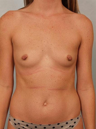 Nipple/Areolar Surgery Gallery - Patient 1310447 - Image 1