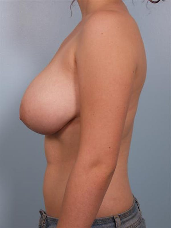 Breast Reduction Gallery - Patient 1310445 - Image 5