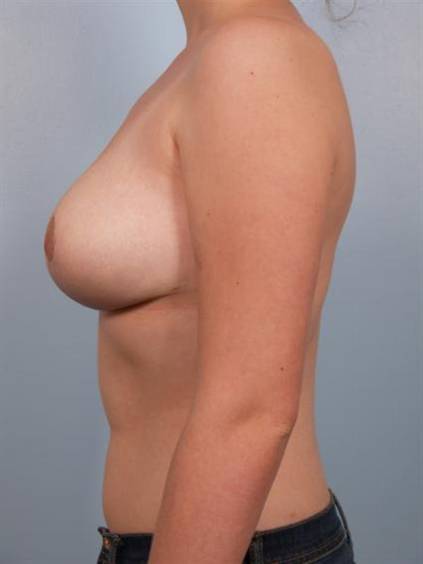 Breast Reduction Gallery - Patient 1310445 - Image 6