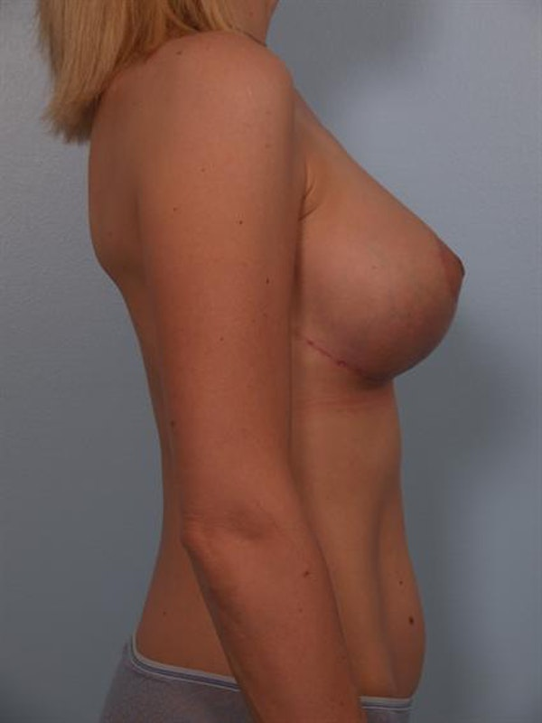 Breast Lift Gallery - Patient 1310446 - Image 4