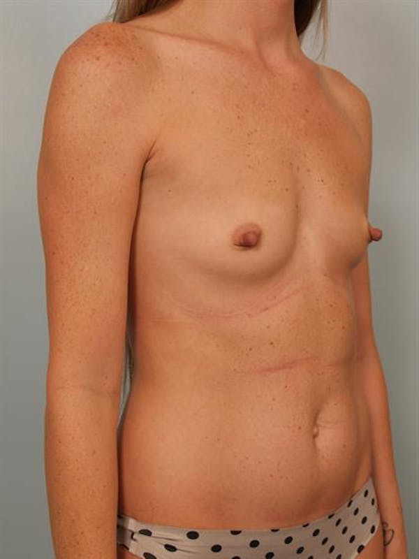 Nipple/Areolar Surgery Gallery - Patient 1310447 - Image 3