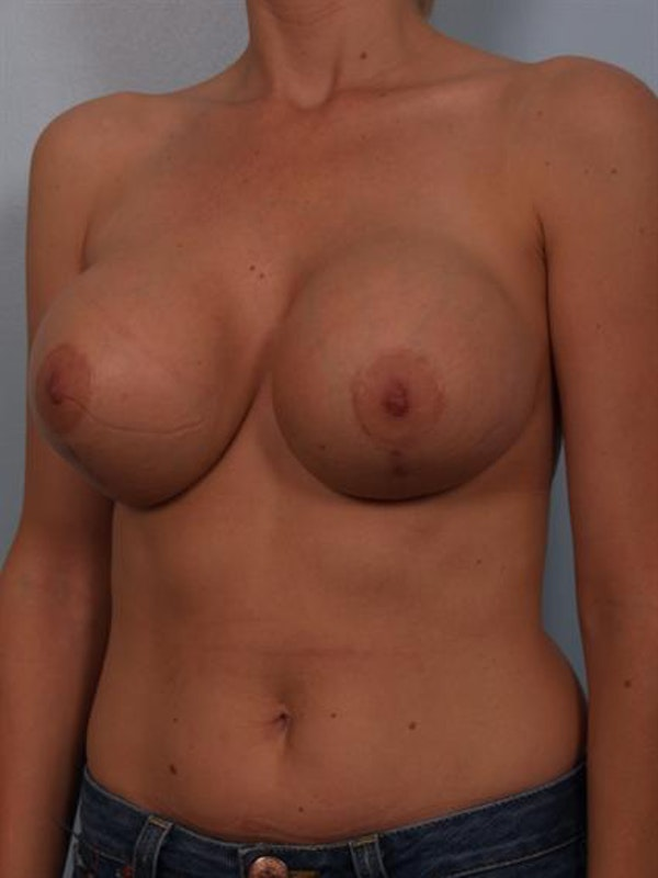 Breast Lift Gallery - Patient 1310446 - Image 5