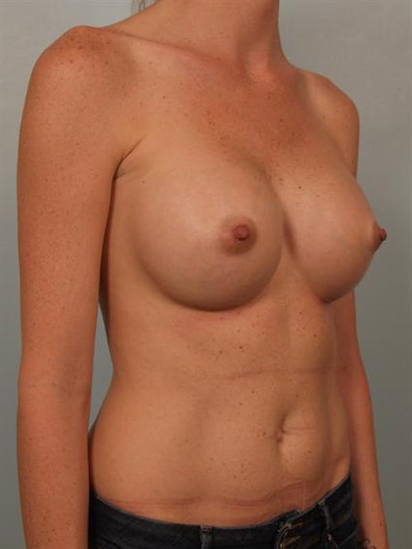 Nipple/Areolar Surgery Gallery - Patient 1310447 - Image 4