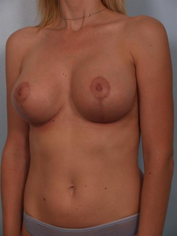 Breast Lift Gallery - Patient 1310446 - Image 6