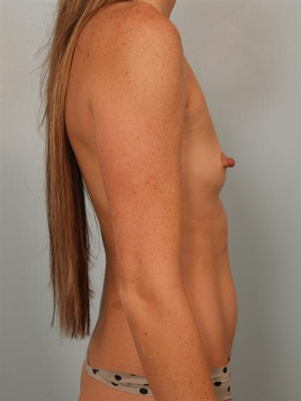Nipple/Areolar Surgery Gallery - Patient 1310447 - Image 5