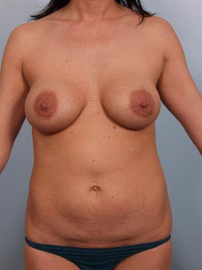 Complex Breast Revision Gallery - Patient 1310450 - Image 1