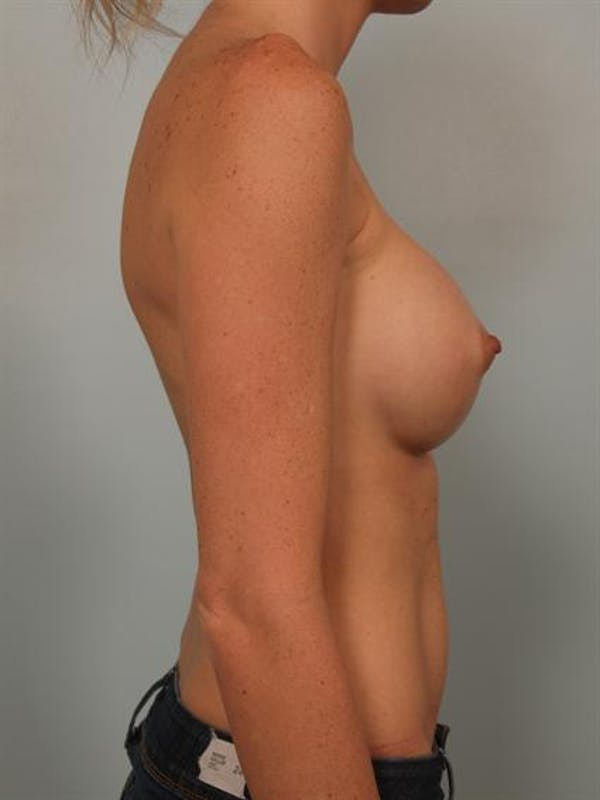 Nipple/Areolar Surgery Gallery - Patient 1310447 - Image 6