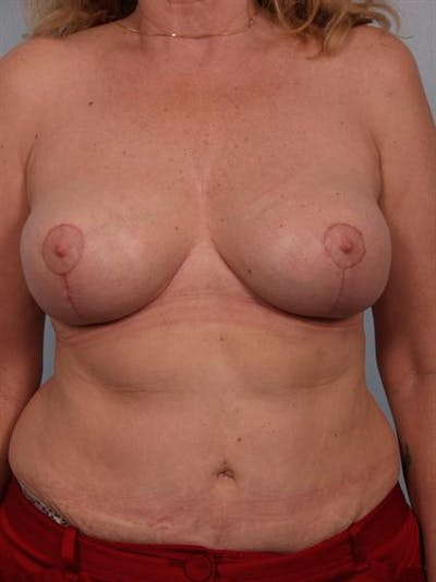 Breast Reduction Gallery - Patient 1310448 - Image 2