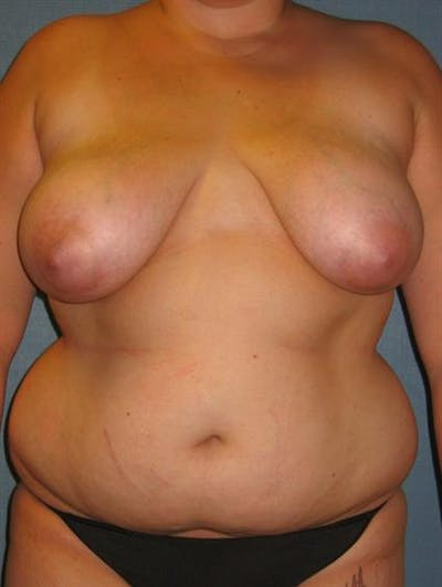 Breast Lift Gallery - Patient 1310453 - Image 1