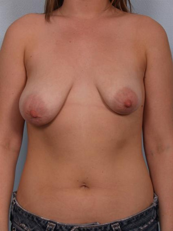 Breast Augmentation Gallery - Patient 1310452 - Image 3
