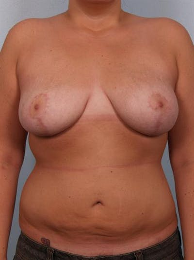 Breast Lift Gallery - Patient 1310453 - Image 2