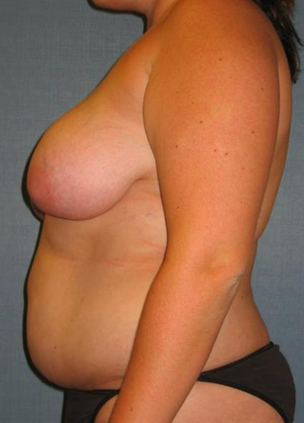 Breast Lift Gallery - Patient 1310453 - Image 3