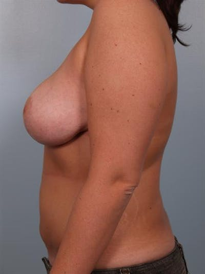 Breast Lift Gallery - Patient 1310453 - Image 4