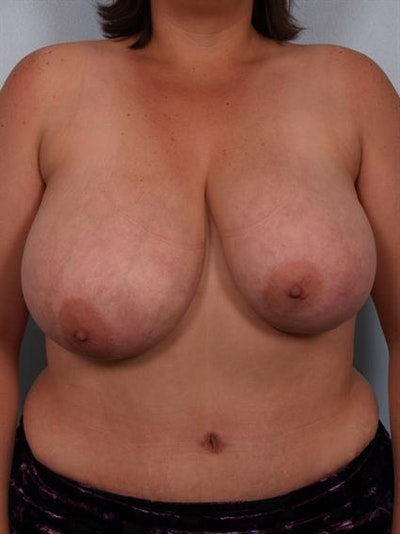 Breast Reduction Gallery - Patient 1310454 - Image 1