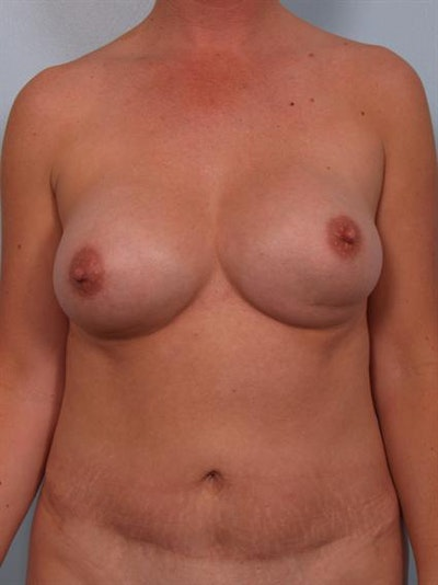 Complex Breast Revision Gallery - Patient 1310455 - Image 1