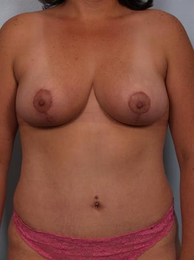 Breast Reduction Gallery - Patient 1310454 - Image 2