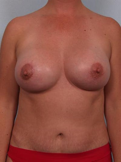 Complex Breast Revision Gallery - Patient 1310455 - Image 2
