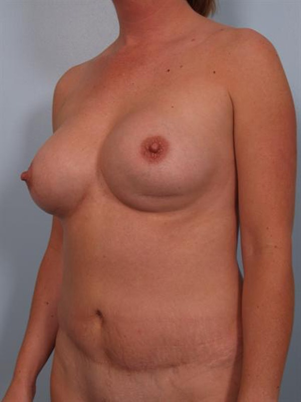 Complex Breast Revision Gallery - Patient 1310455 - Image 3