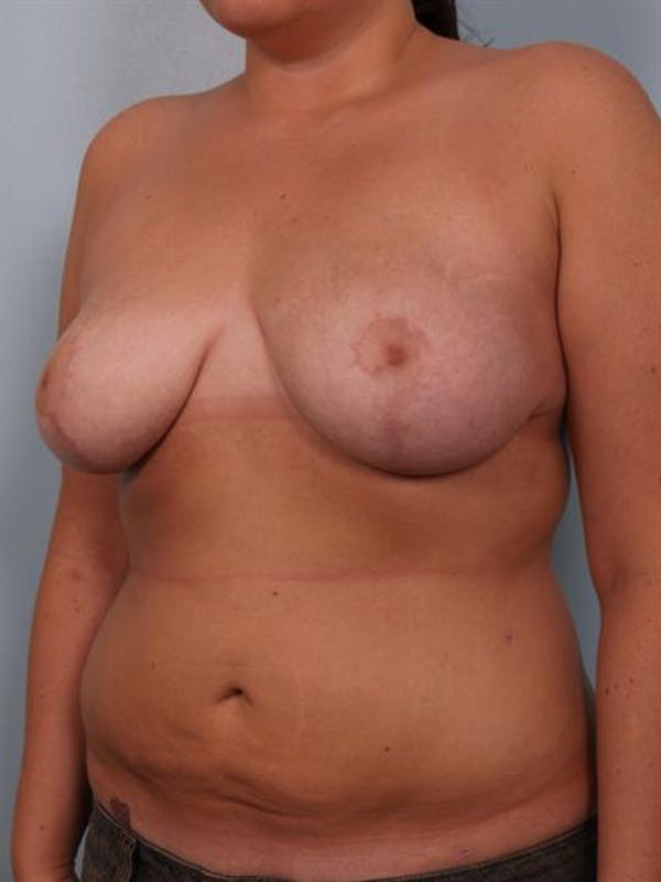 Breast Lift Gallery - Patient 1310453 - Image 8
