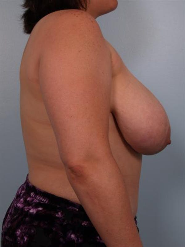 Breast Reduction Gallery - Patient 1310454 - Image 5